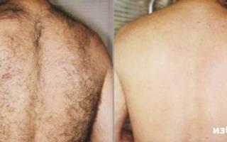 Удаление волос на спине