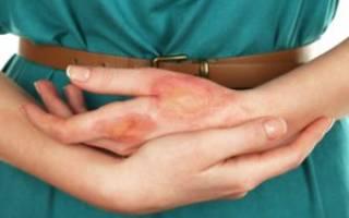 Химический ожог кожи лечение в домашних условиях